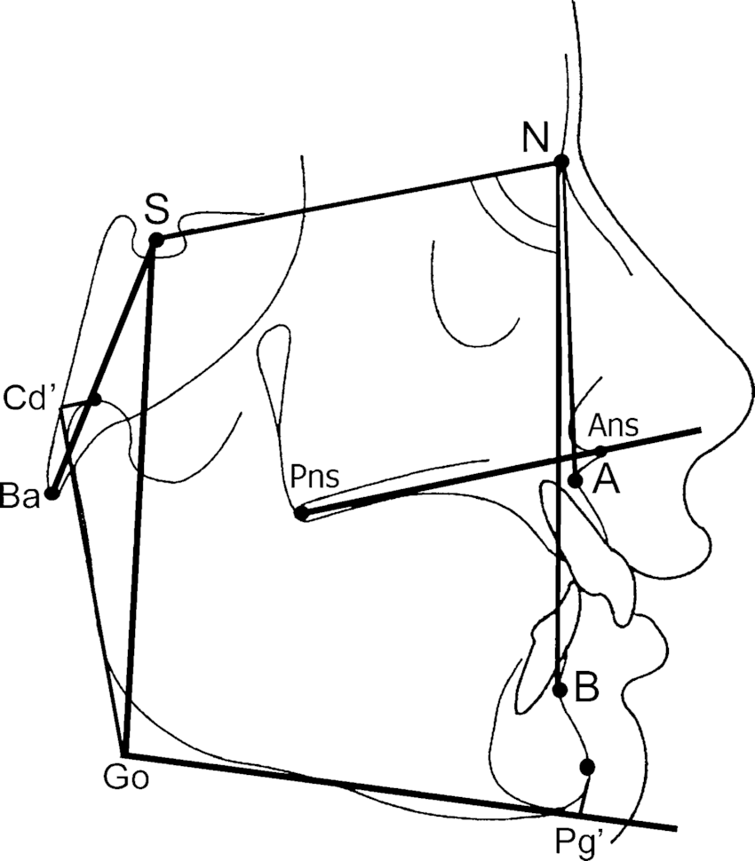 Fig 1 linear and angular measurements used for cephalometric analysis n s