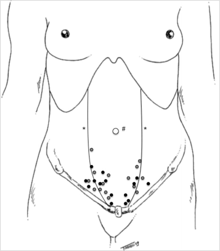 Location of the trigger points. Notes: # umbilical scar