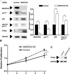 marcks knockdown increases kis expression and cell proliferation in endothelial cells a human coronary [ 850 x 964 Pixel ]