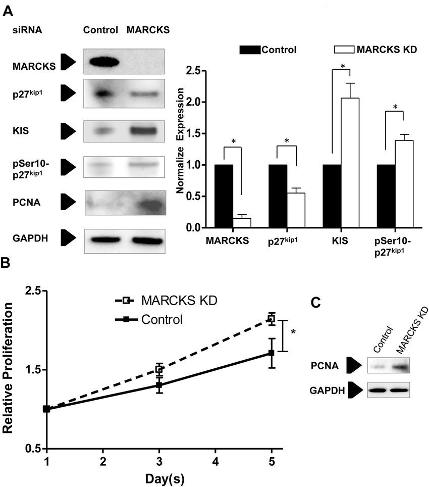 hight resolution of marcks knockdown increases kis expression and cell proliferation in endothelial cells a human coronary