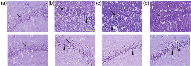 Cresyl violet staining in the rat hippocampus CA1 ( Â 400): (a) The... | Download Scientific Diagram