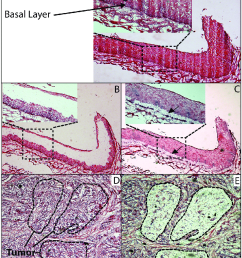 histology of normal esophageal epithelium and escc a hematoxylin and eosin h e  [ 836 x 1121 Pixel ]