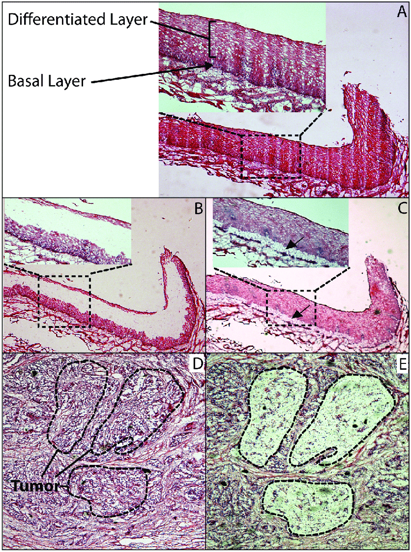 medium resolution of histology of normal esophageal epithelium and escc a hematoxylin and eosin h e
