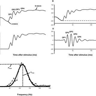 (PDF) Whole-Retina Reduced Electrophysiological Activity