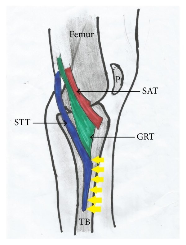 medium resolution of  a photograph and b schematic illustration showing type v pes anserinus with accessory participation from a second sartorius muscle and semitendinosus