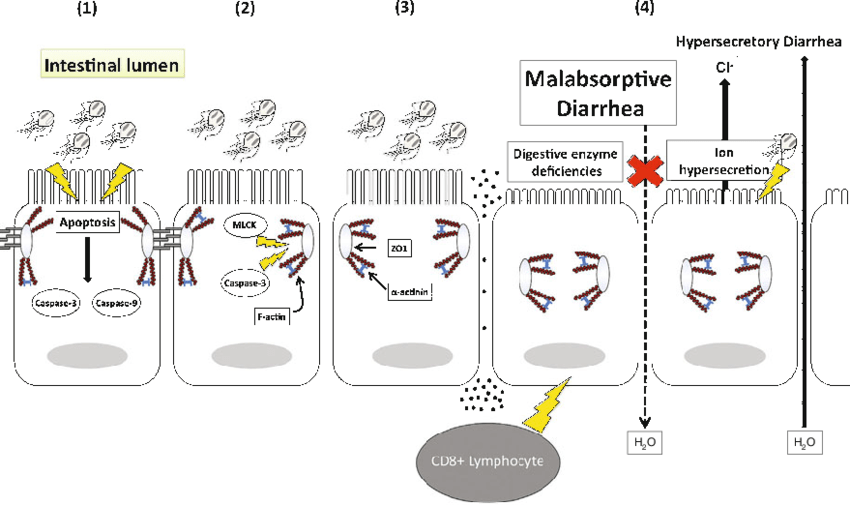 1 The pathophysiology of Giardia duodenalismediated
