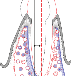 15 the bone physiology associated with translation of a tooth note that there is a [ 850 x 1196 Pixel ]