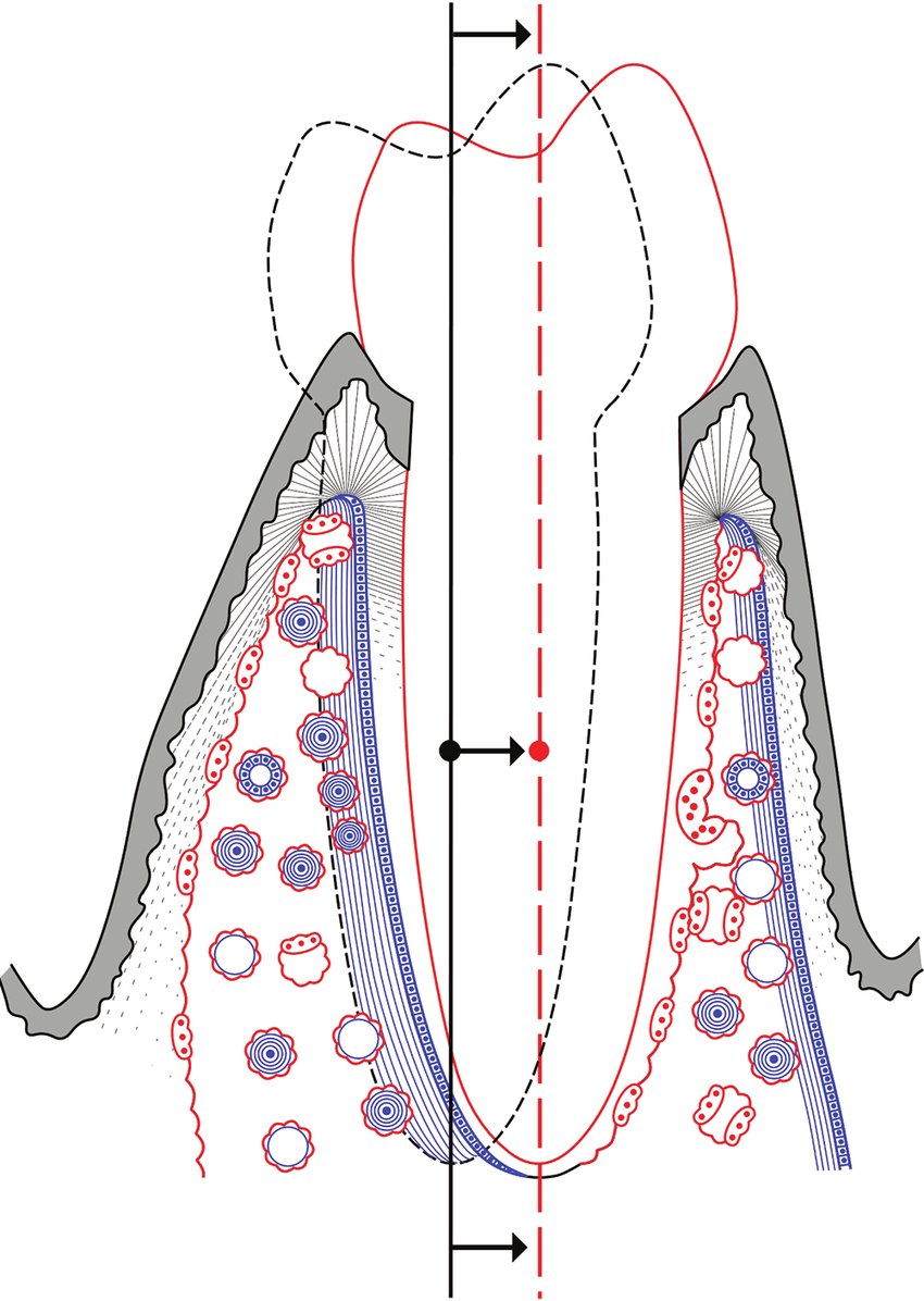 hight resolution of 15 the bone physiology associated with translation of a tooth note that there is a