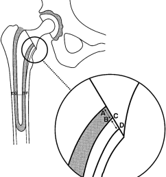 diagram of a total hip replacement showing the position of the measurement of the proximomedial thickness [ 850 x 988 Pixel ]