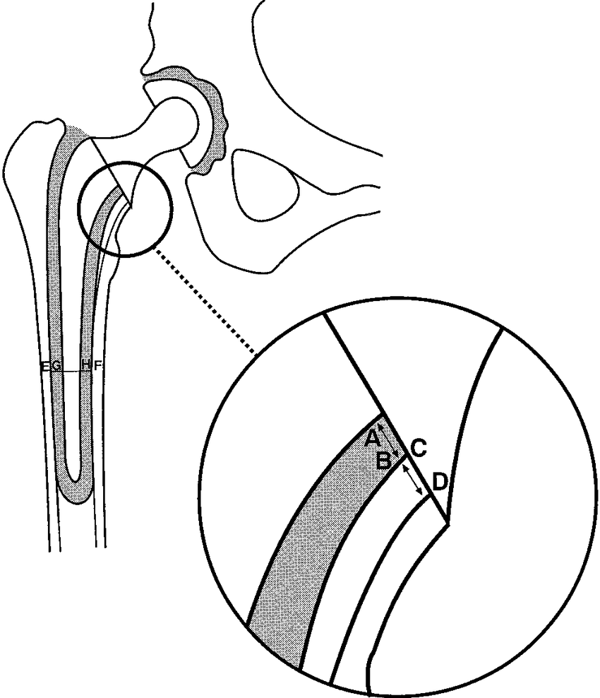 hight resolution of diagram of a total hip replacement showing the position of the measurement of the proximomedial thickness