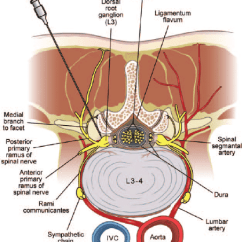 Lumbar Nerve Root Diagram Honeywell 2 Port Valve Wiring Axial View Of Transforaminal And Selective Injection Download Scientific