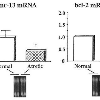Top) Distribution of nr-13 mRNA in chicken tissues. Bottom