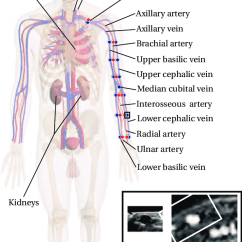 Vascular Anatomy Diagram Lower Swimming Pool Sand Filter Overview Of The Relevant For Access Surgery Download Scientific