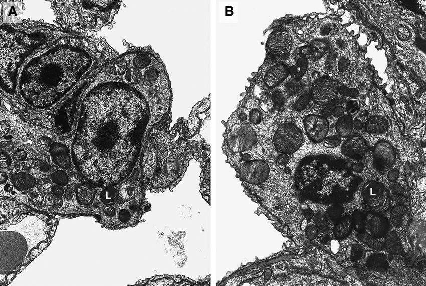 Electron micrograph of a type II pneumocyte from a 2-to 3-wk-old PTP-/...   Download Scientific Diagram