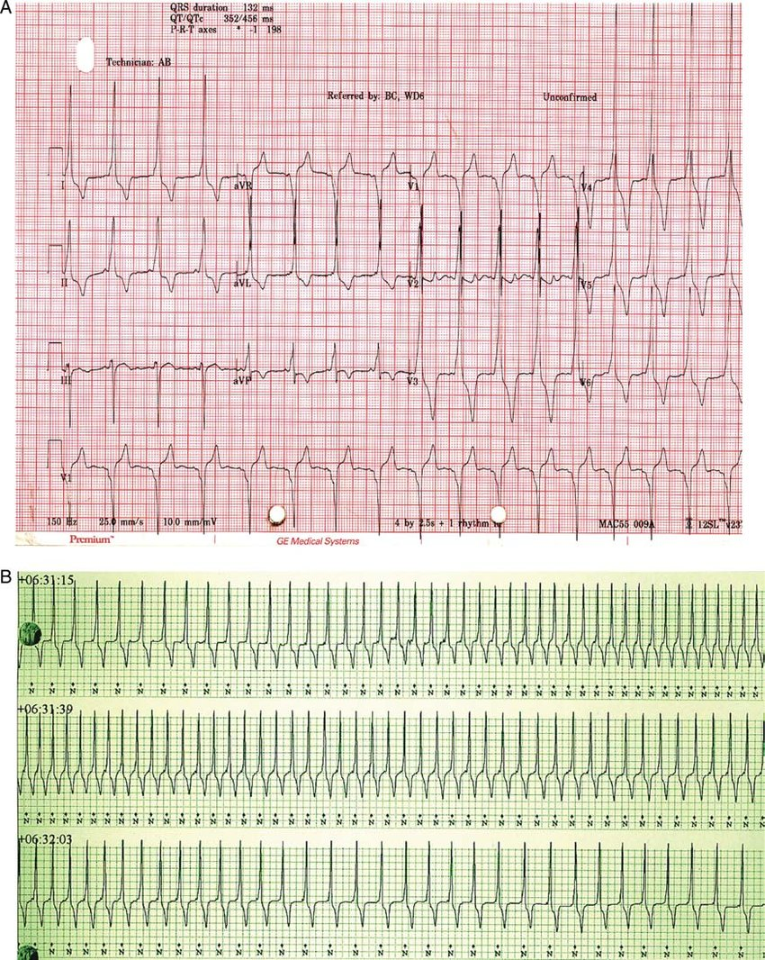 (A) The 12-lead ECG with pre-excitation consistent with a ...