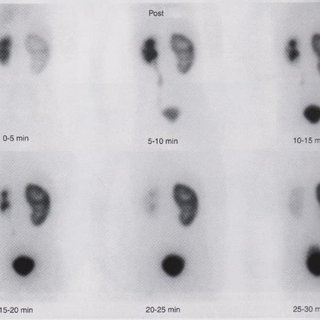 (PDF) Nuclear Medicine Imaging. Angiotensin-Converting Enzyme Inhibitor (Captopril) Renography