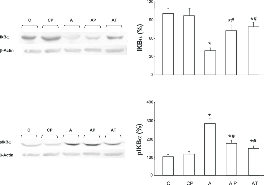 Western blot analyses of IB and phospho-IB (pIêB) in the
