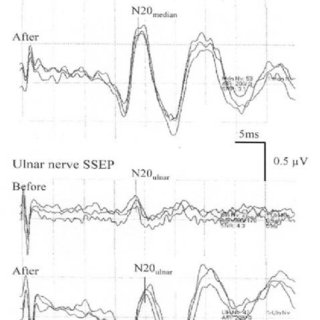 (PDF) Intraoperative somatosensory evoked potentials to
