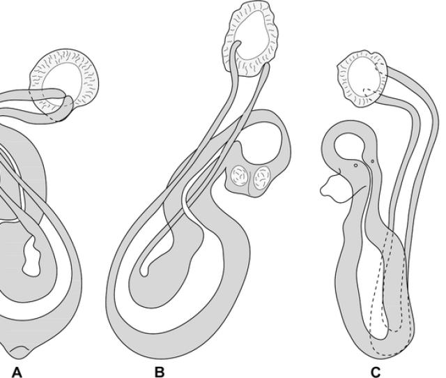 Pseudorhabdosynochus Hayet N Sp From Mycteroperca Rubra Various Shapes Of Sclerotised Vagina According