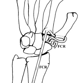-Schematic representation of the ligament reconstruction