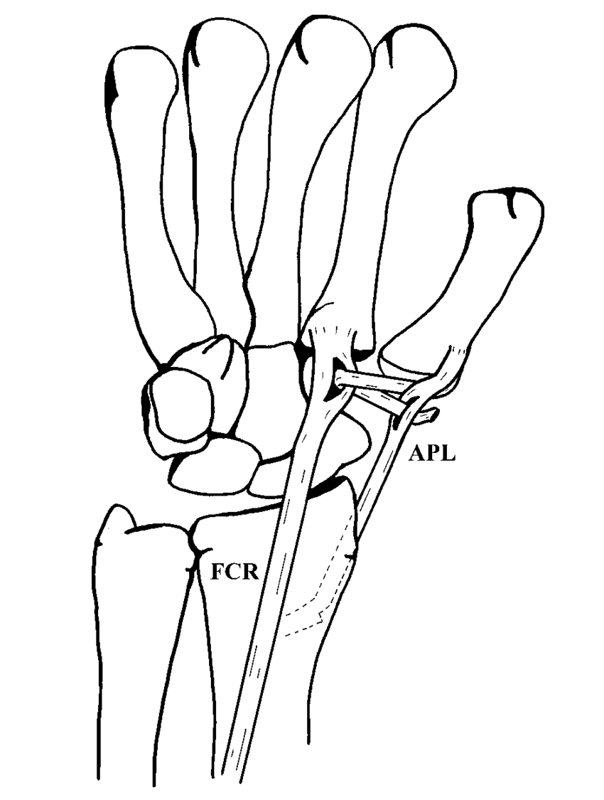 -Schematic representation of the abductor pollicis longus