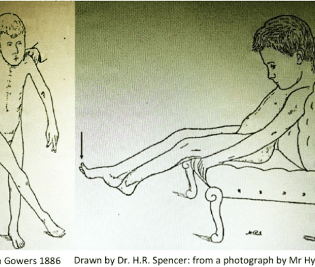 Scissoring In Cerebral Palsy By Gowers