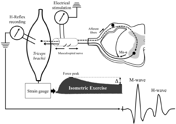 Schematic experimental procedure to evoke H-reflex and