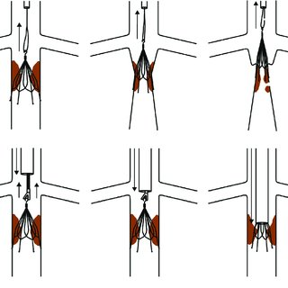 Examples of closed cell versus open cell IVC filters. (a