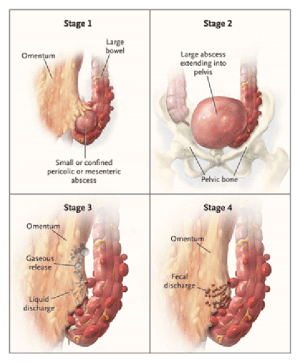 The Hinchey Classification of perforated diverticulitis