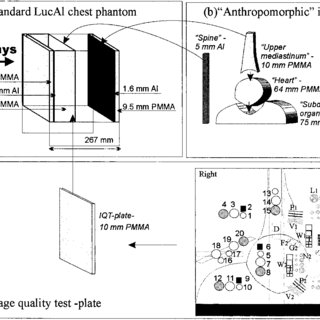 Schematic view of the modified LucAl chest phantom. (a
