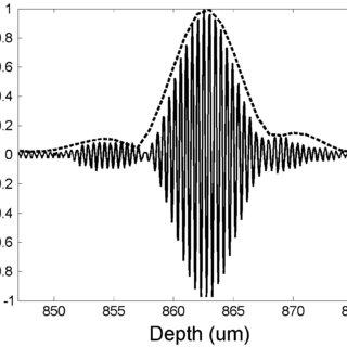 OCT system block diagram. TIA: Transimpedance amplifier