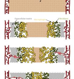 2 schematic diagram of wound healing  [ 850 x 1247 Pixel ]