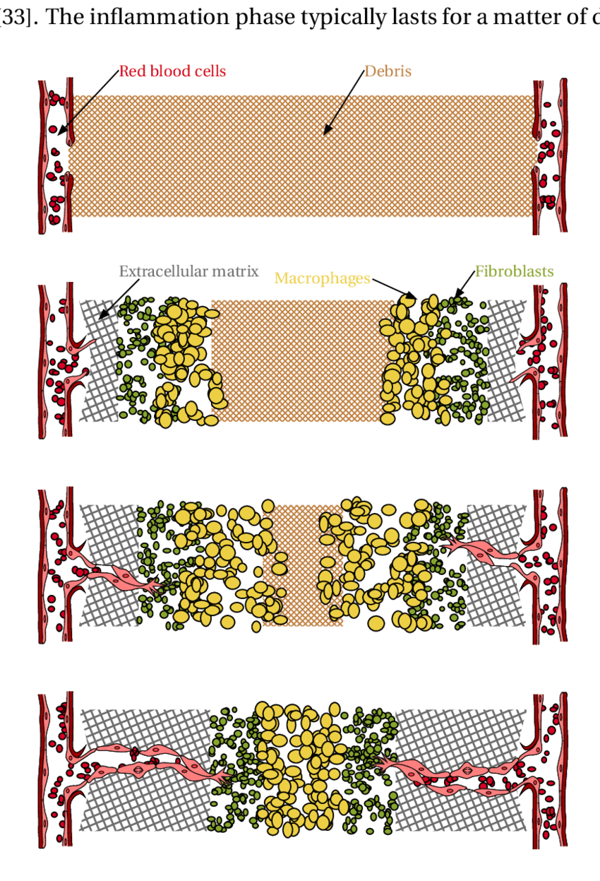 hight resolution of 2 schematic diagram of wound healing