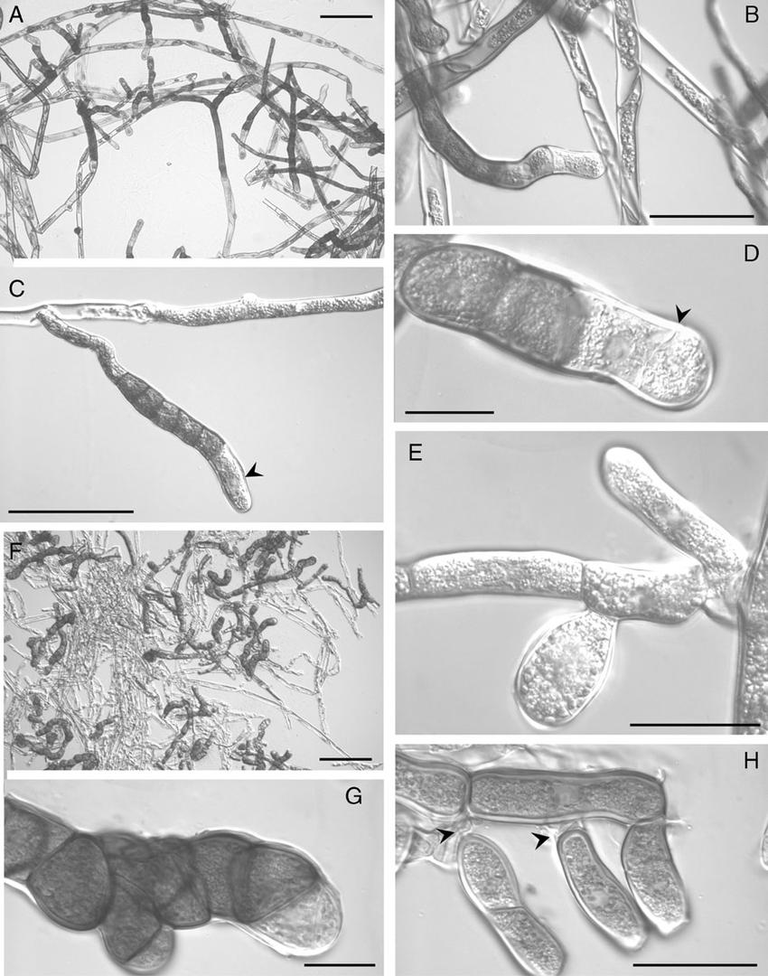 hight resolution of light micrographs of sucrose aba treated protonemata a the majority of