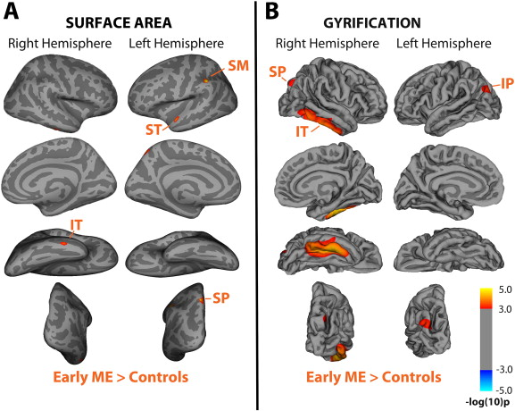 Average inflated brain showing regions of increased (A