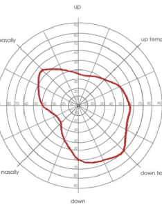 Vasrd visual field chart used to score for rating disability showing  reduced also rh researchgate
