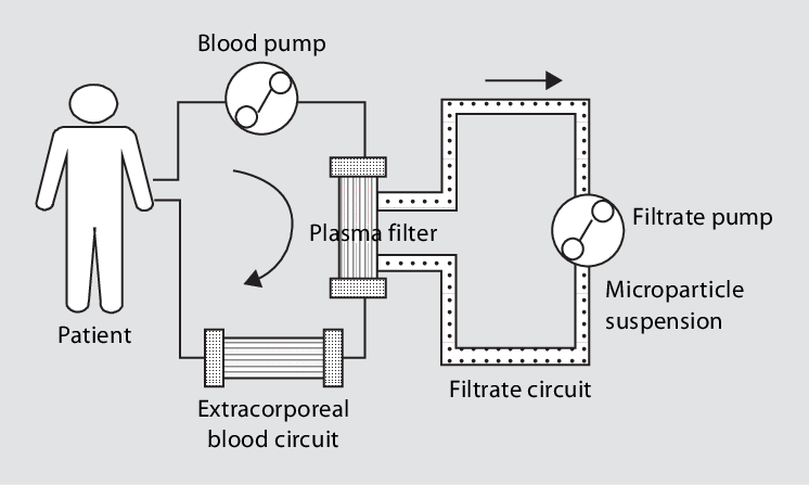 Schematic drawing of the MDS. The blood (or primary