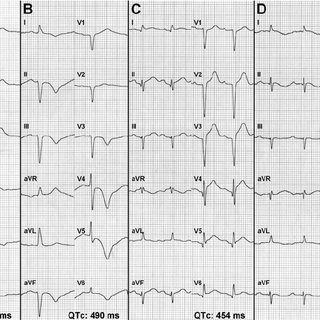 The ECG evolutionary changes in the course of takotsubo