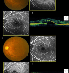 fundus photograph indocyanine green angiograms icg and optical download scientific diagram [ 850 x 1258 Pixel ]