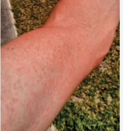 papular skin rash on arm a common symptom of zika fever  [ 850 x 1009 Pixel ]