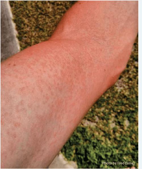 small resolution of papular skin rash on arm a common symptom of zika fever