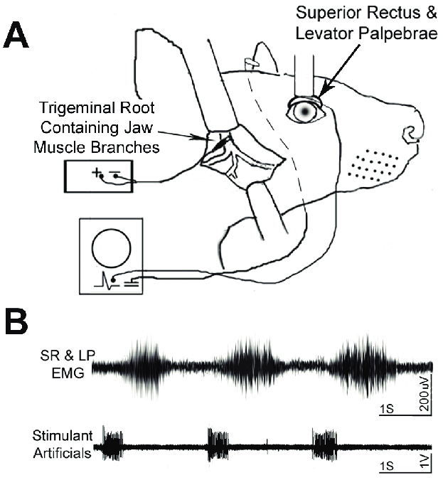 trigeminal nerve diagram painless wiring a schematic illustrating the exposed root that contains jaw muscle branches and localization of bipolar stimulation