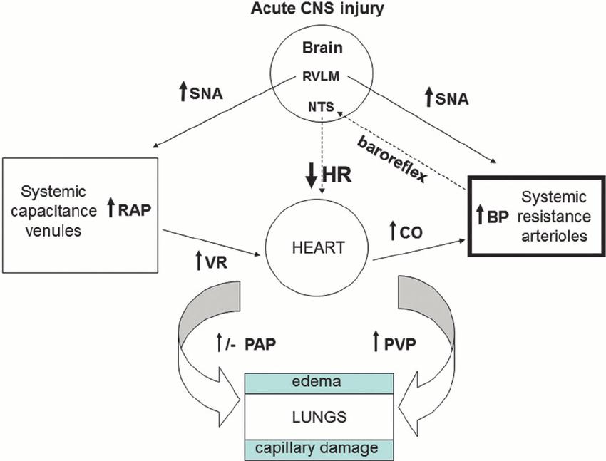 central venous pressure diagram