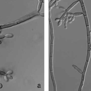 Microscopic appearance of Chinese strains of Fonsecaea pedrosoi (left)... | Download Scientific Diagram