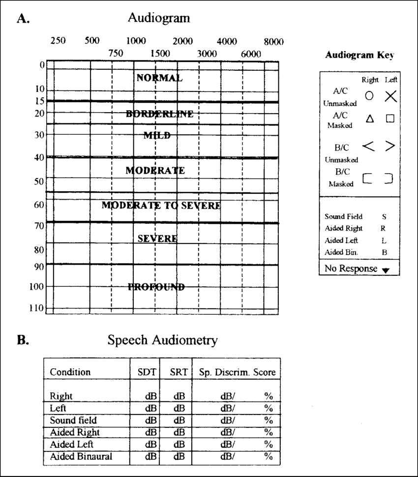 Recording forms used in audiometric testing. A) Audiogram