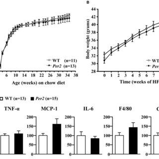 GTT, ITT test, and basal plasma insulin concentration in
