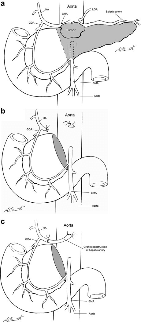 Schematic of Appleby resection including coeliac axis (a
