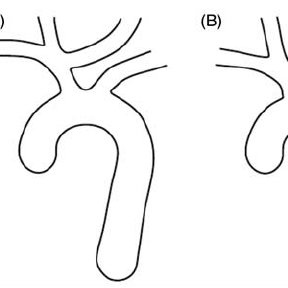 Left panel: Angiographic appearance of the bovine aortic