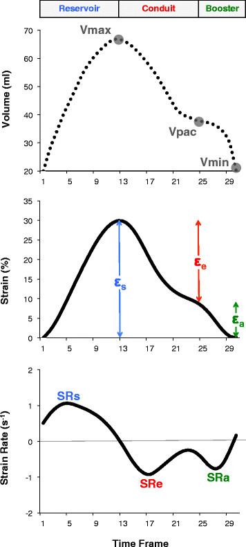 Quantification of atrial function as derived from