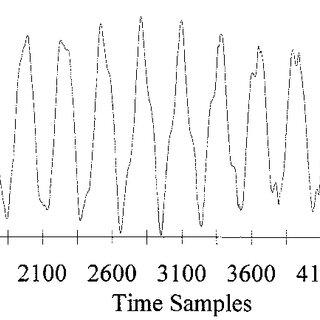 Block diagram of inverter-three phase squirrel-cage